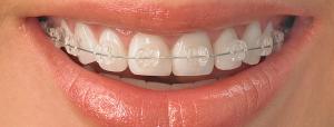 ortodoncija-fiksna-3